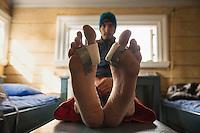 Make-shift bandages on heavily blistered feet after 10 days of hiking, Saltoluokta Fjällstation, Kungsleden trail, Lapland, Sweden