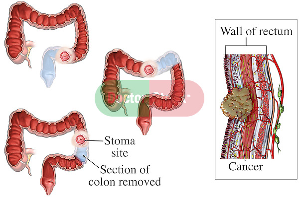 This medical exhibit illustrates several different stoma sites that can be created if a portion of the colon or rectum is removed due to cancer. A cross-section of the wall of the rectum containing cancer cells is shown.
