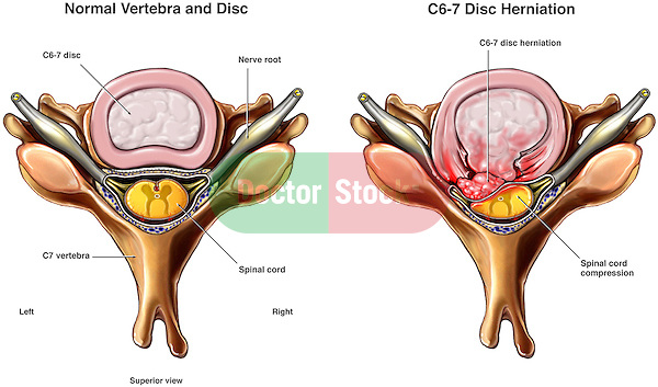 C6-7 Disc Herniation with Spinal Cord Compression.