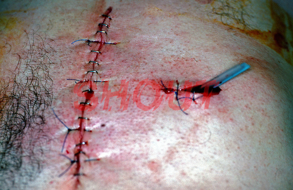 Operative scar after emergency operation. Victim had a knife wound of abdomen. This image may only be used to portray the subject in a positive manner..©shoutpictures.com..john@shoutpictures.com