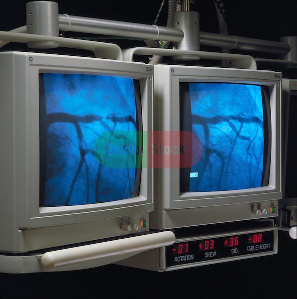 video monitors displaying heart during cardiac catherization