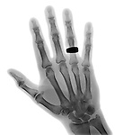 Normal hand x-ray of a 68 year old man wearing a ring