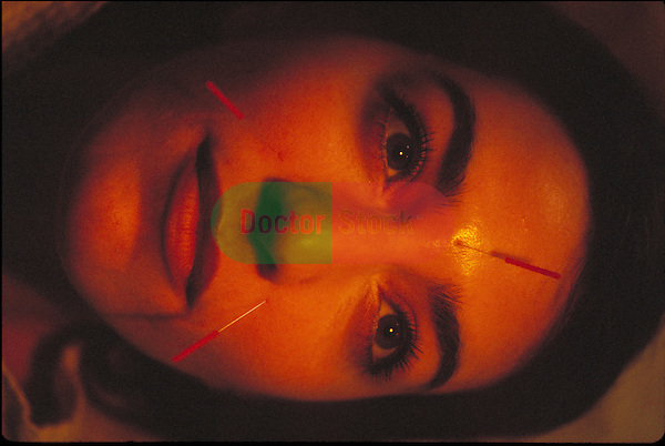 close-up of female patient with acupuncture needles in face