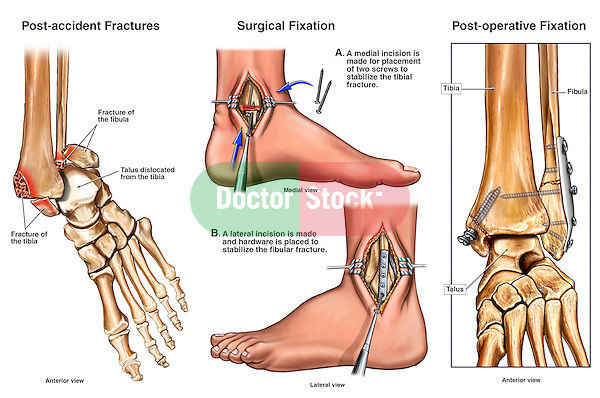 Left Bimalleolar Ankle Fractures with Subsequent Surgical Fixation