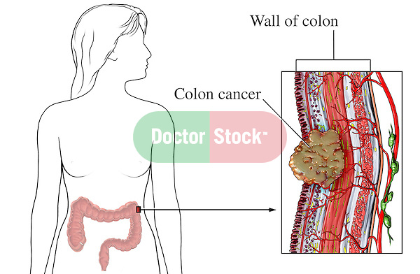 This medical exhibit illustrates the anatomy of the abdomen and large bowel with a malignant (invading) cancerous tumor of the colon wall.  It features an anterior (front) view of a female silhouette showing the location with a detailed cut section through a segment of the colon wall with a cancerous tumor.