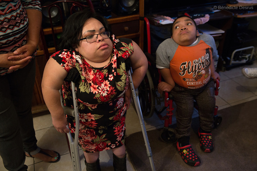Brenda Eduardo Torres, 32 (L) and Alfredo Ivan Torres Gil, 18 (R), pictured at their home in Mexico City, Mexico on February 16, 2017. Brenda & Alfredo are two of five siblings, three of whom have been diagnosed with Morquio syndrome. Morquio syndrome is a rare inherited birth defect that is estimated to occur in one of every 200,000 births. The disease may not be visible at birth; symptoms usually begin between ages 1 and 3. Morquio syndrome is a progressive disease, meaning symptoms get worse as a child grows. Photo credit: Bénédicte Desrus