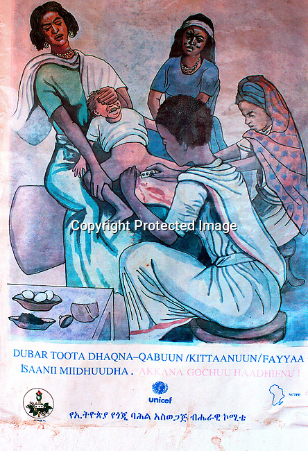 dicoeth00051.Ethiopia. A poster informing of the dangers of Female Genital Mutilation (FGM) on February 6, 2001in a rural clinic outside Harar, in eastern Ethiopia..©Per-Anders Pettersson/iAfrika Photos