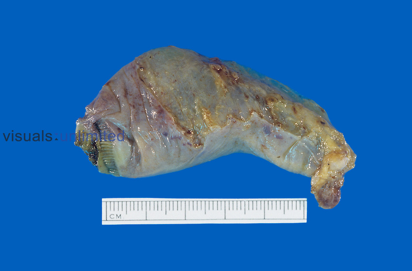 Normal human gallbladder.