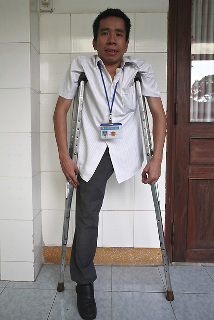 Nguyen Duc, 32, poses for a portrait outside his office in the Agent Orange children's ward at Tu Du Hospital in Ho Chi Minh City, Vietnam. Duc and his brother Viet were born as conjoined twins, a result of their mother's exposure to Agent Orange during the Vietnam War. They were surgically separated in 1988, seven years after their birth, and his non-cognitive brother died in 2007 after years of health problems. Duc has since married, and now has 4-year-old twins of his own. They are both normal, he says. May 1, 2013.
