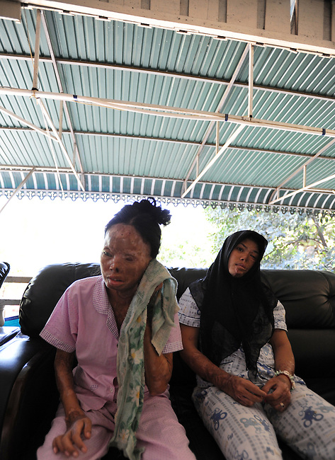 Acid violence survivors share some time in the patio of Cambodian Acid Survivors Charity, CASC.
