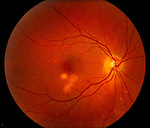 Macular degeneration of the retina showing an area of discoloration that represents a growth of new blood vessels under the diseased portion of the retina. The central region of the retina called the macula is the area most predisposed to the changes shown here. The lighter colored area represents scarring and seepage of fluid into the retina. Series