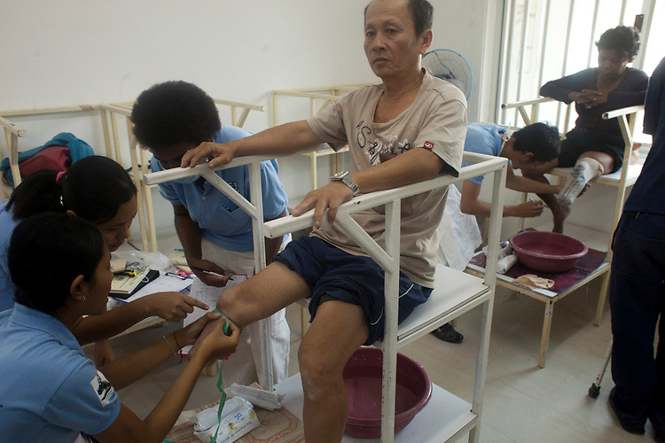 Victims of land mines are attended to at a hospital in Phnom Penh, Cambodia administered by the NGO Cambodia Trust. <br /> <br /> Photos &copy; Dennis Drenner 2013.