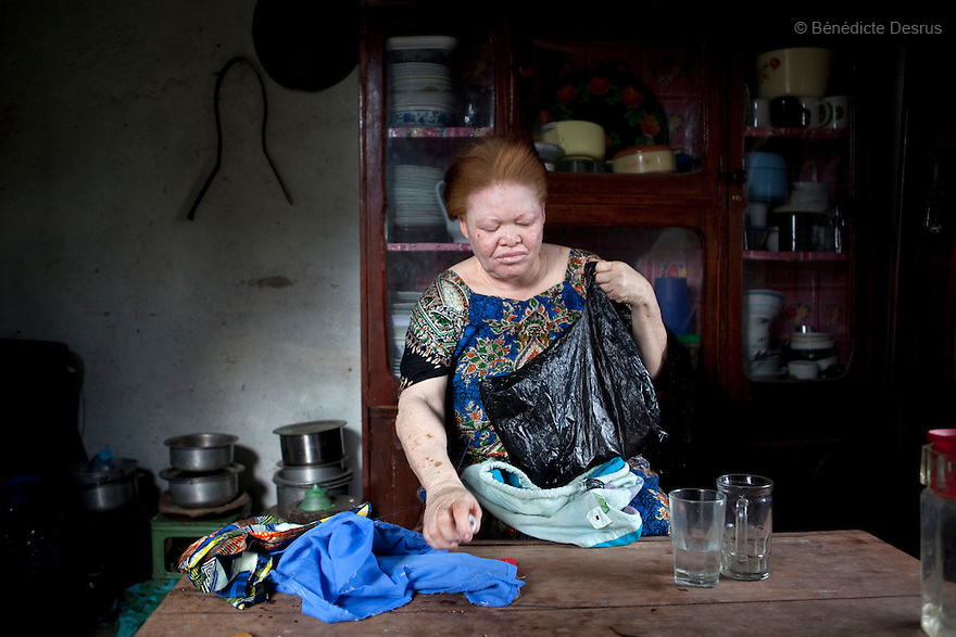 June 28, 2010 - Dar Es Salaam, Tanzania - Mwazanije Ramadhani is a 60 year old Tanzanian albino. She lives with her mother Hawa Seifu Komba. Together they run a business making and selling arts and craft. Albinism is a recessive gene but when two carriers of the gene have a child it has a one in four chance of getting albinism. Tanzania is believed to have Africa' s largest population of albinos, a genetic condition caused by a lack of melanin in the skin, eyes and hair and has an incidence seven times higher than elsewhere in the world. Over the last three years people with albinism have been threatened by an alarming increase in the criminal trade of Albino body parts. At least 53 albinos have been killed since 2007, some as young as six months old. Many more have been attacked with machetes and their limbs stolen while they are still alive. Witch doctors tell their clients that the body parts will bring them luck in love, life and business. The belief that albino body parts have magical powers has driven thousands of Africa's albinos into hiding, fearful of losing their lives and limbs to unscrupulous dealers who can make up to US$75,000 selling a complete dismembered set. The killings have now spread to neighboring countries, like Kenya, Uganda and Burundi and an international market for albino body parts has been rumored to reach as far as West Africa. Photo credit: Benedicte Desrus