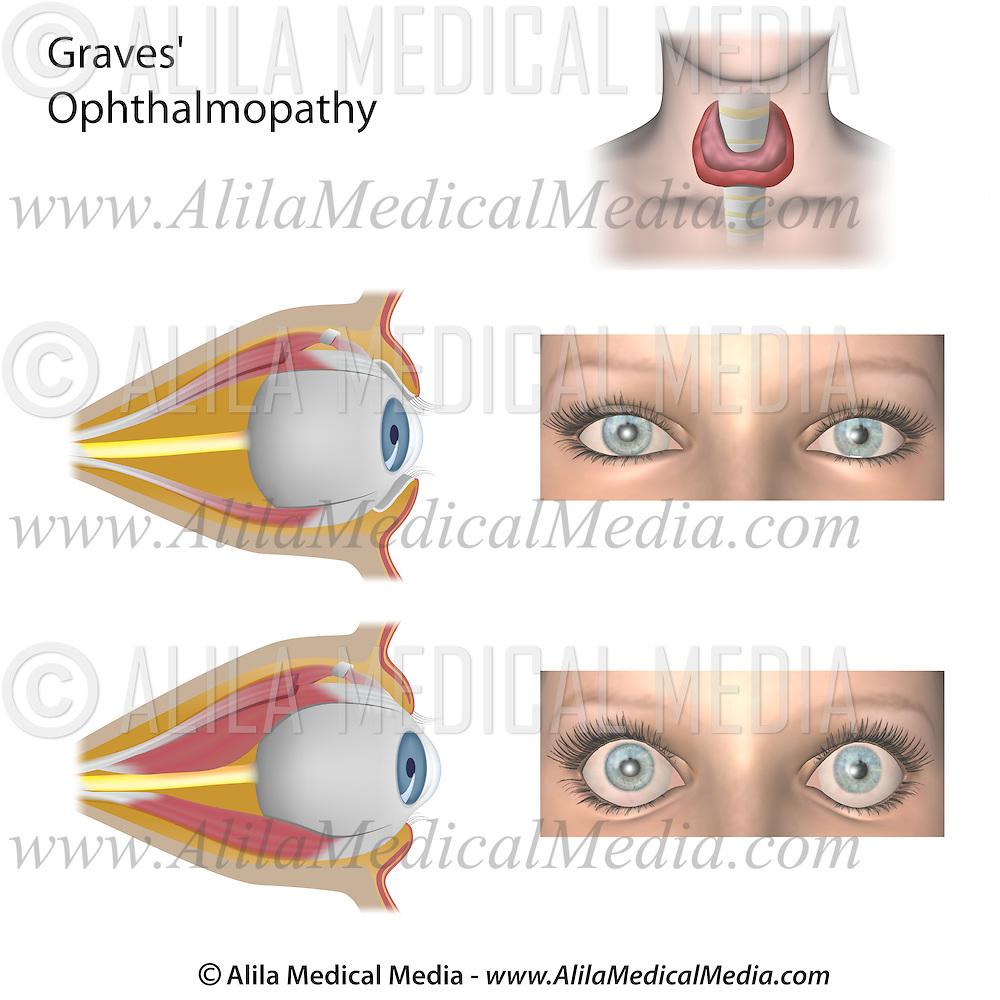 Thyroid Eye Disease Alila Medical Images