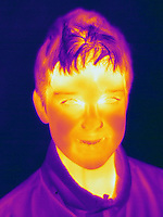 A Thermogram of a young boy without a hat.  This image was taken in winter.The different colors represent different temperatures on the object. The lightest colors are the hottest temperatures, while the darker colors represent a cooler temperature.  Thermography uses special cameras that can detect light in the far-infrared range of the electromagnetic spectrum (900?14,000 nanometers or 0.9?14 µm) and creates an  image of the objects temperature.  This image is part of a set.