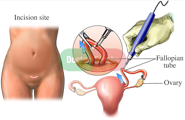 This medical illustration shows an open tubal ligation surgery where the fallopian (ovarian) tube is extracted through an abdominal wall incision and ligated with a cautery tool.