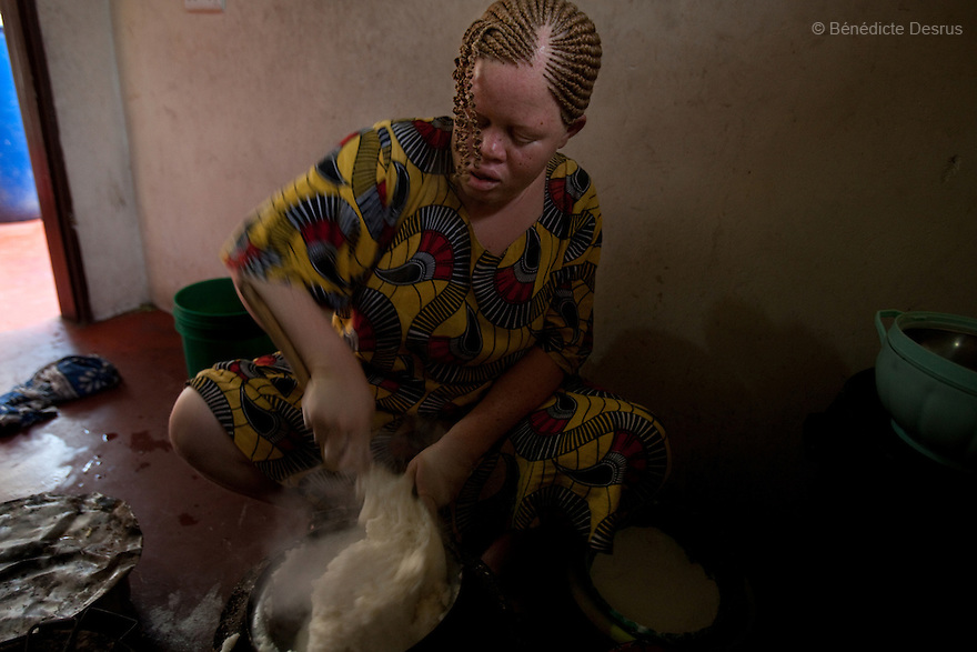 10 june 2010 - Dar Es Salaam, Tanzania - Samuel Mluges daughter: Lilina Adelina (25 yrs) while cooking at the family house. Samuel Herman Mluge (51yrs) an albino rights activist in Dar Es Salaam, Tanzania and his wife Teresa January (46 yrs) have five children, all with albinism. Albinism is a recessive gene but when two carriers of the gene have a child it has a one in four chance of getting albinism. Tanzania is believed to have Africa' s largest population of albinos, a genetic condition caused by a lack of melanin in the skin, eyes and hair and has an incidence seven times higher than elsewhere in the world. Over the last three years people with albinism have been threatened by an alarming increase in the criminal trade of Albino body parts.At least 53 albinos have been killed since 2007, some as young as six months old.Many more have been attacked with machetes and their limbs stolen while they are still alive. Witch doctors tell their clients that the body parts will bring them luck in love, life and business. The belief that albino body parts have magical powers has driven thousands of Africa's albinos into hiding, fearful of losing their lives and limbs to unscrupulous dealers who can make up to US$75,000 selling a complete dismembered set. The killings have now spread to neighbouring countries, like Kenya, Uganda and Burundi and an international market for albino body parts has been rumoured to reach as far as West Africa. Photo credit: Benedicte Desrus