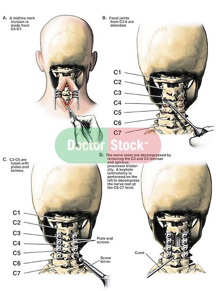C3 C4 Posterior Cervical Laminectomies C6 7 Laminotomy