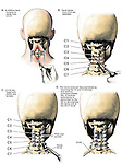 Whiplash Injury - C3-C4 Posterior Cervical Laminectomies, C6-7 Laminotomy and Spinal Fusion Surgery.