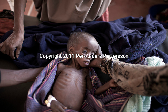 DADAAB, KENYA - JULY 28: Farhiyo Yussuf, age 3, lies severely malnourished in a hospital in the IFOR refugee camp on July 28, 2011 outside Dadaab, Kenya. She weighs only 4,6 kilograms. Her mother Yariy Bule, lost her fourteen year old son during a almost month walk from Somalia to the camp. Hundreds of thousands of people have fled the hardship and civil war in Somalia to Dadaab. A severe drought has added to the misery and hardship. Some refugees has walked for up to thirty days to reach the camp, and some children died on the way, due to lack of food and water. (Photo by Per-Anders Pettersson)