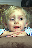 Young female child suffering with Chickenpox