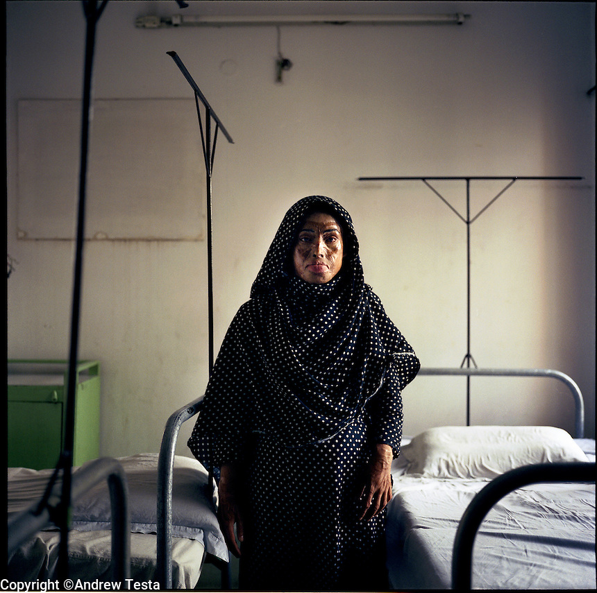 BANGLADESH. Dhaka. June 2005..Lilima, who was married off to a 42-year old at the age of 10, attacked with acid when she refused to sleep with her husband, spent 15 years indoors untill she was discovered by aid workers and given help at the Dhaka clinic..©Andrew Testa