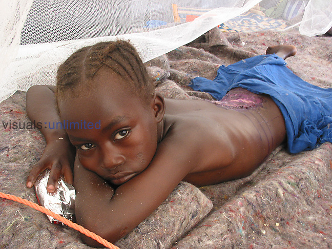 Darfur, Sudan - Injured child in Kalma camp.