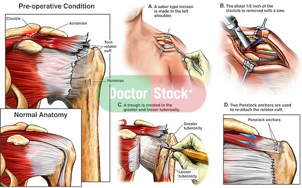 Traumatic, Torn Left Rotator Cuff with Open Corrective Surgery.