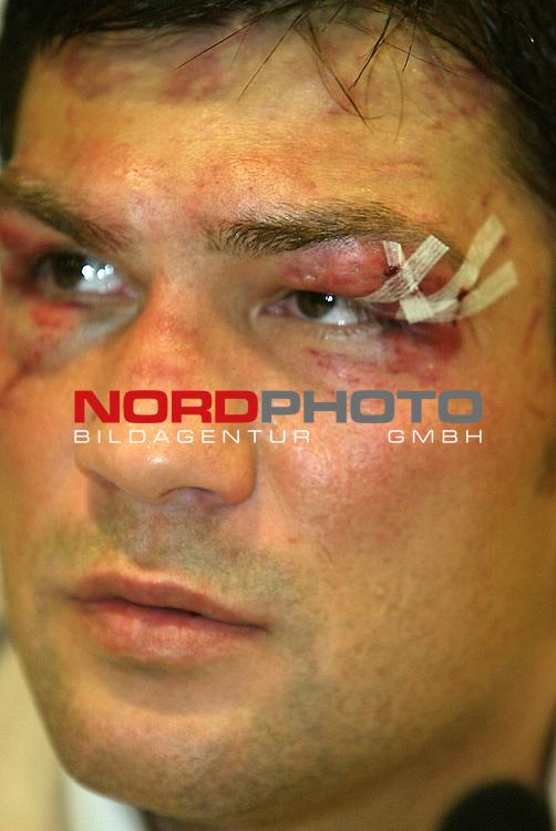 WBO-Weltmeisterschaft im Halbschwergewicht in der Color Line Arena Hamburg<br /> Darius ( Tiger ) Michalczewski zeigte sich bei der Presskonferenz stark gezeichnet<br /> <br /> Foto &copy; nordphoto <br /> <br /> <br /> <br />  *** Local Caption *** Foto ist honorarpflichtig! zzgl. gesetzl. MwSt.<br />  Belegexemplar erforderlich<br /> Adresse: nordphoto<br /> Georg-Reinke-Strasse 1<br /> 49377 Vechta