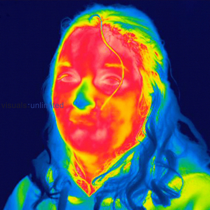 Thermogram of the face of an adult woman. The temperature scale runs from white (warmest) through red, yellow, green and cyan, blue and black (coldest).