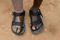 TOGO, Tohoun, orphanage, girl with leg prosthesis