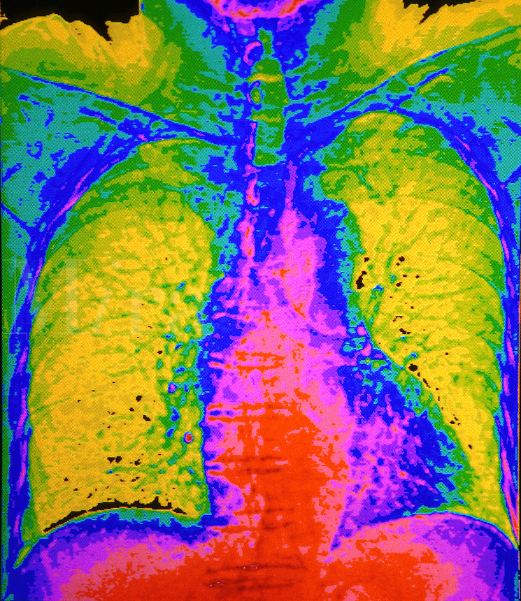 CAT scan of chest and lung.