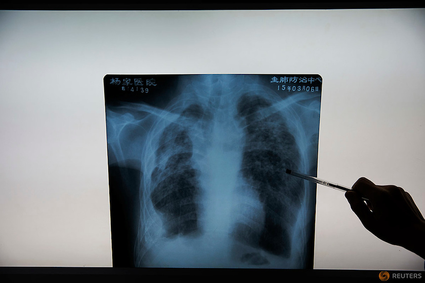 Fu Jianghua, the head of Yangjia Hospital shows a x-ray image of what he said is a typical case of pneumoconiosis, a disease caused by dust in lungs in Wuji County, China's Zhejiang Province October 19, 2015. Fu Jianghua works at Yangjia Hospital since 1983 when it was still operated by a local mine. The hospital, once considered top medical institution with latest imported equipment became private after the mine company that built it went broke in 2001. Since that time the hospital is not able to keep the high standards and is now offering only basic care for its remaining patients.    REUTERS/Damir Sagolj
