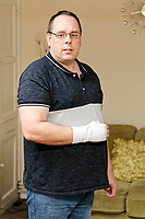 Pictured: Jason Williams at his house in Swansea, Wales, UK. Friday 09 February 2018<br /> Re: Jason Williams from Swansea has sued car manufacturer Vauxhall after the silver Zafira he owned, burst into flames trapping him and his three year old daughter inside. As a result, his right hand was injured while he was trying to smash the windscreen in order to free himself during the incident in south Wales, UK.
