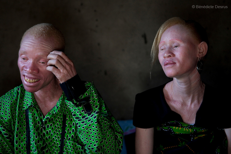 June 26, 2010 - Dar Es Salaam, Tanzania - Augostino Msisi, a 49 year old Tanzanian albino and his wife Janette Anatoli, a 27 year old Tanzanian albino at their home. Albinism is a recessive gene but when two carriers of the gene have a child it has a one in four chance of getting albinism. Tanzania is believed to have Africa' s largest population of albinos, a genetic condition caused by a lack of melanin in the skin, eyes and hair and has an incidence seven times higher than elsewhere in the world. Over the last three years people with albinism have been threatened by an alarming increase in the criminal trade of Albino body parts. At least 53 albinos have been killed since 2007, some as young as six months old. Many more have been attacked with machetes and their limbs stolen while they are still alive. Witch doctors tell their clients that the body parts will bring them luck in love, life and business. The belief that albino body parts have magical powers has driven thousands of Africa's albinos into hiding, fearful of losing their lives and limbs to unscrupulous dealers who can make up to US$75,000 selling a complete dismembered set. The killings have now spread to neighboring countries, like Kenya, Uganda and Burundi and an international market for albino body parts has been rumored to reach as far as West Africa. Photo credit: Benedicte Desrus