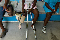 Port Au Prince, Haiti, April 19, 2010.Handicap International center; thousands of people have lost one or more limbs in the January 12 earthquake; the need for prosthetics and reeducation is enormous and will be long lasting as many victims are children who will need constant adjustments to their prothesis.