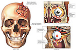 Head Injury - Skull and Orbital Blowout Fractures. Dramatic exhibit reveals complex fractures to the fronto-parietal region of the left side of the head with extension into the left orbit and maxillary sinus. It features a single anterior view of the skull with overview of the fractures followed by two detailed sections detailing the injury extension into the left orbital region.