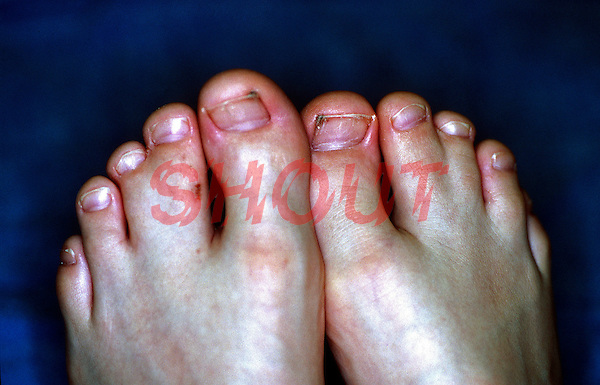 Webbed toes - congenital defect. This image may only be used to portray the subject in a positive manner..©shoutpictures.com..john@shoutpictures.com
