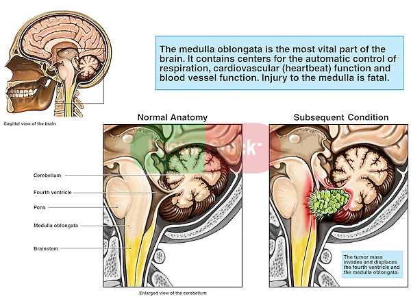 This medical exhibit reveals cut-away comparative views of the brainstem and cerebellar region. The first detail identifies elements of normal anatomy, the second shows the appearance of an invasive tumor in the brainstem region invading the brainstem, pons and cerebellum.