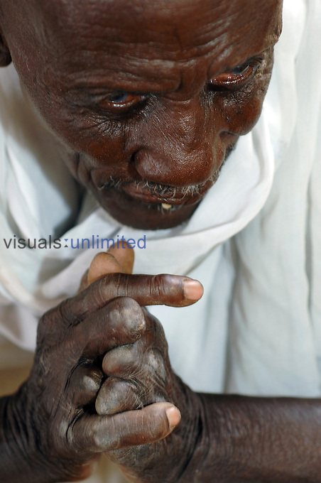 The clasping mutilated hands of an elderly man with leprosy. Leprosy (Hansen's disease) is a chronic infectious disease caused by Mycobacterium leprae, an acid-fast, rod-shaped bacillus, which has struck fear into human beings for thousands of years. It affects the skin and mucous membranes, and irreversibly damages nerves. The disease is treated with antiba