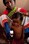 Under nourished four year old Latiya Vanskar eats a boiled egg with his mother Archana at a UNICEF feeding centre in Shivpuri, Madhya Pradesh state in India. Despite 15 yeas of economic growth the incidence of child malnutrition has barely changed -- 46 percent of children under 5 in India are malnourished: twice the rate of sub Saharan Africa.. A report released last week said a mixture of poor governance , the caste system dis-empowerment of women and superstition are preventing children from getting the nutrition they need, condemning another generation to brain damage, low earning potential and early death. At the moment 3000 children a day die in India as a result of malnutrition.
