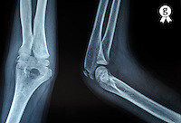 X-ray image of boy's (11) joint elbow (Licence this image exclusively with Getty: http://www.gettyimages.com/detail/97580217 )
