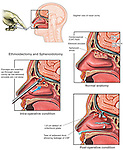 Endoscopic Sinus Surgery with Iatrogenic Damage to Cribriform Plate. This medical illustration shows forceps inserted into the nasal cavity to cut away the ethmoid sinuses during an ethmoidectomy and sphenoidotomy. A normal anatomy drawing shows healthy sphenoid sinuses, cerebrospinal fluid, CSF, dura mater, and cribiform plate. The post-surgical condition indicates CSF leakage and a defect in the cribiform plate.