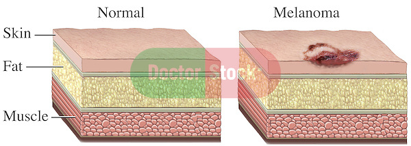 Malignant Melanoma Skin Cell Cancer. This stock medical illustration compares a normal skin section with melanoma, a highly malignant type of skin cancer that arises in melanocytes. Melanoma usually begins in a mole. In one image, the skin, fat and muscle are healthy and normal. In the other skin section, a melanoma is seen affecting the skin layer.