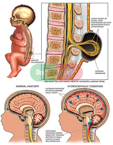 congenital birth defects - spina bifida, hydrocephalus and arnold, Skeleton