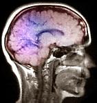 MRI of the brain - Sagittal View
