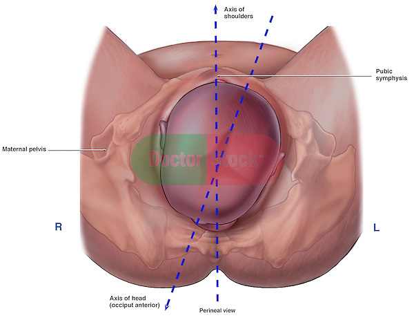 Labor and Delivery - Axis of the Fetal Shoulders in Relation to the Maternal Pelvis. Depicts fetus crowning through mother's birth canal.