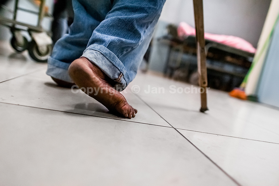 A Salvadoran barefoot man limps in the hospital corridor while seeking a medical help in the emergency department of a public hospital in San Salvador, El Salvador, 21 December 2015.