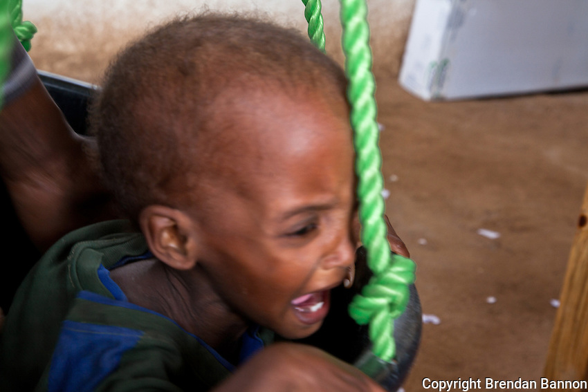 Kenya/ Somali refugees. Severely malnourished baby Mahad, age 2, being weighed at the MSF clinic at the reception center in Dagahaley refugee camp. Mahad's family arrived in the sprawling refugee camp in June after fleeing drought and war in Baidabo, Bay region, Somalia. The journey took them 20 days. They traveled by road to Dobley and from Dobley at the Kenya border they travelled by foot and were set upon by bandits who beat the adults. Mahad was admitted to the therapeutic feeding unit at the MSF run hospital. UNHCR/ Brendan Bannon/ July 2011.