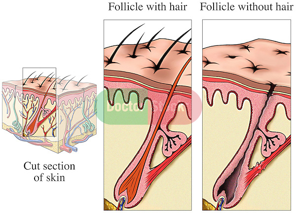 This medical exhibit a cube section through the dermal (skin) layers comparing a normal follicle with hair and a similar follicle without hair representing baldness or alopecia. Labels identify the cut section of skin, follicle with hair and follicle without hair.